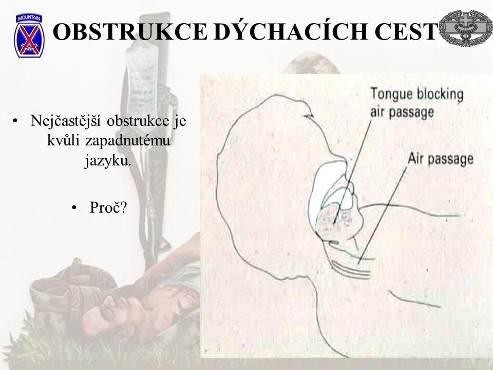 OBSTRUKCE DÝCHACÍCH CEST Krevní sraženiny, zuby Měkké tkáně,kosti Otoky Pozice hlavy Poranění hlavy