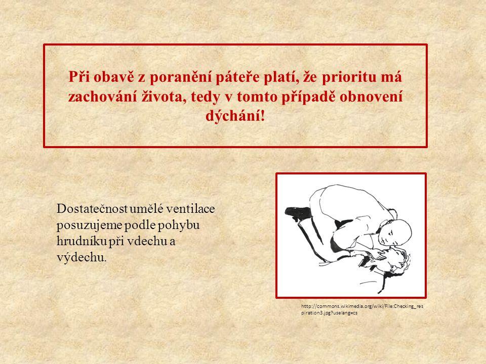 Nepřímé umělé dýchání dle Silvestra-Brosche je nouzovým východiskem při infekcích, kontaminaci toxickými látkami a poraněních obličeje.
