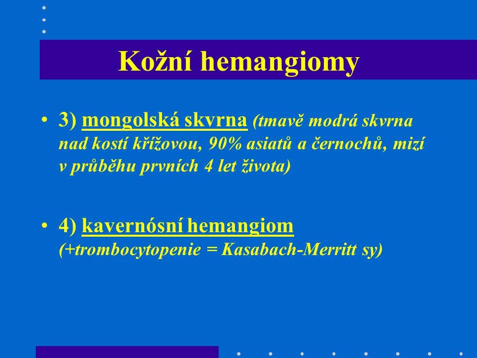 Kožní hemangiomy 3) mongolská skvrna (tmavě modrá skvrna nad kostí křížovou, 90% asiatů a černochů, mizí v průběhu prvních 4 let života) 4) kavernósní