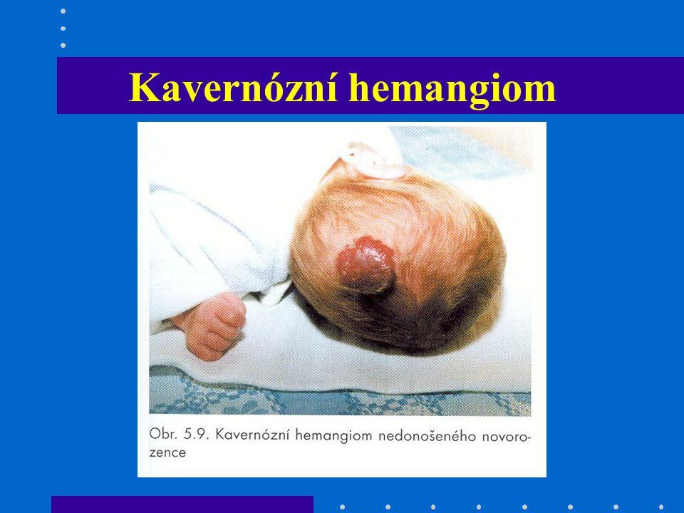 Kavernózní hemangiom