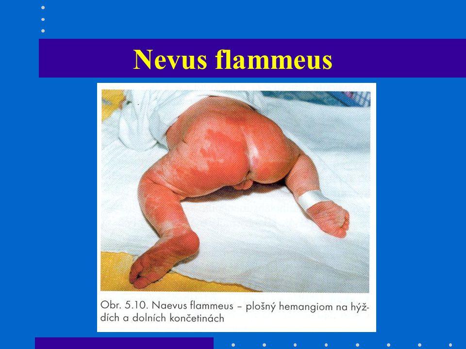 Vrozené vady kůže Ichtyosis vrozená porucha keratinizace Epidermolysis bullosa vrozená porucha dermoepidermálního spojení
