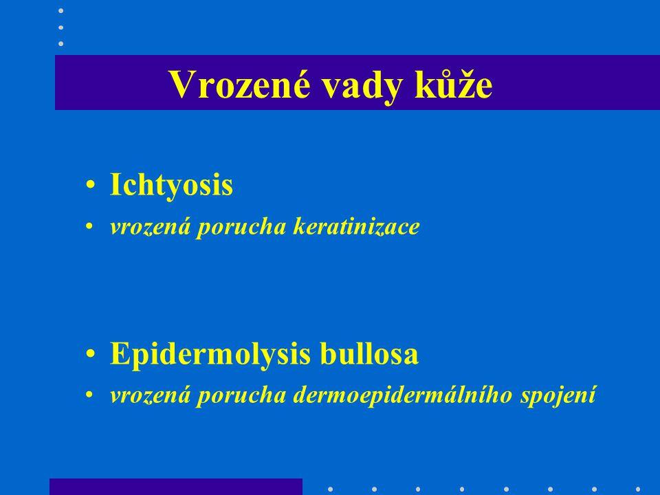 Ichtyosis