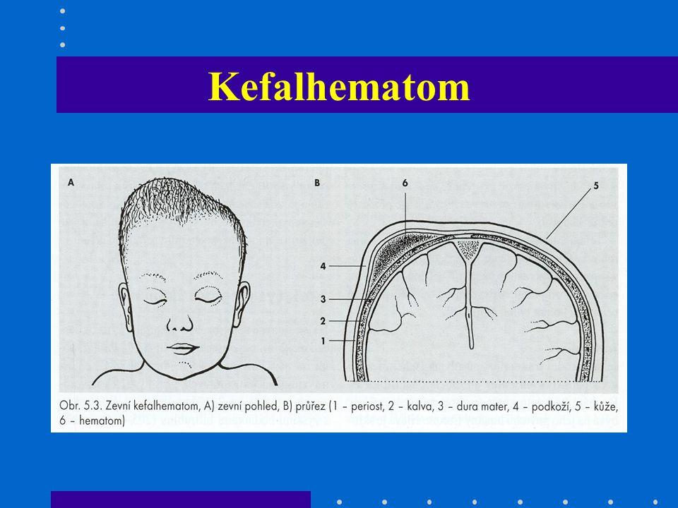 Krk celistvost klíčních kostí zvětšení štítné žlázy torticollis (spasmus m.STKLM,forceps, KP) pterygium colli ( Turnerův sy) krvácení do m.STKLM