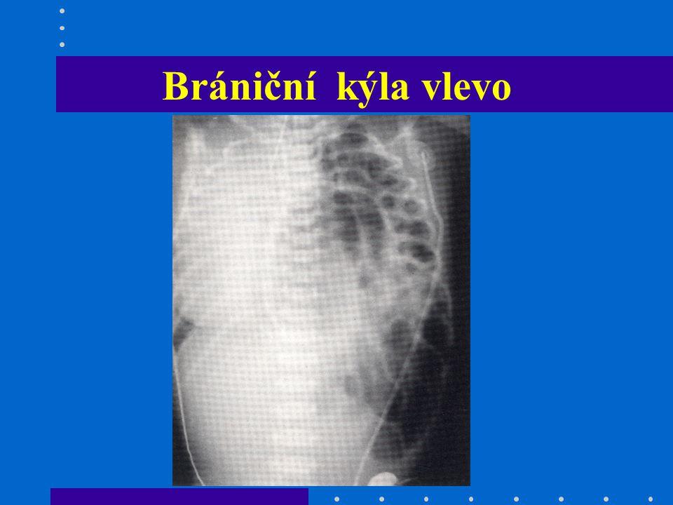 Břicho - aspekce v úrovni vzedmuté (osbtrukce GIT) pod úrovní ( člunkovité - brániční kýla) VVV (omphalokéle, gastroschisis, extrofie moč.