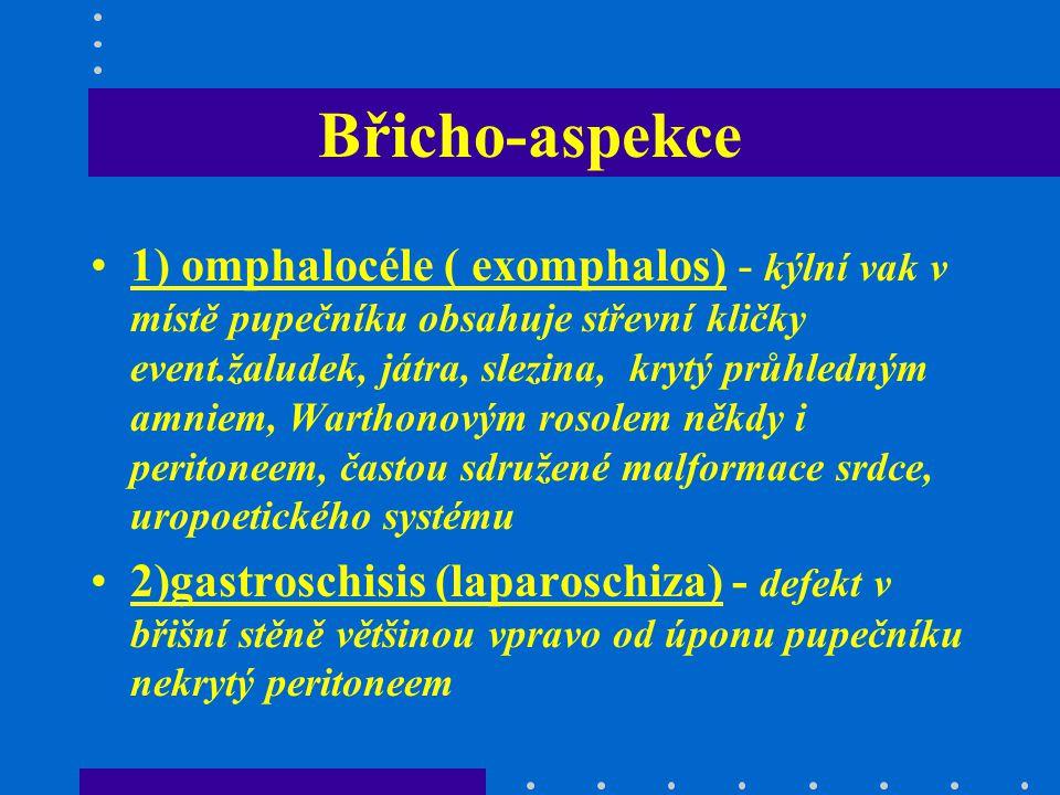 Břicho-aspekce 1) omphalocéle ( exomphalos) - kýlní vak v místě pupečníku obsahuje střevní kličky event.žaludek, játra, slezina, krytý průhledným amni