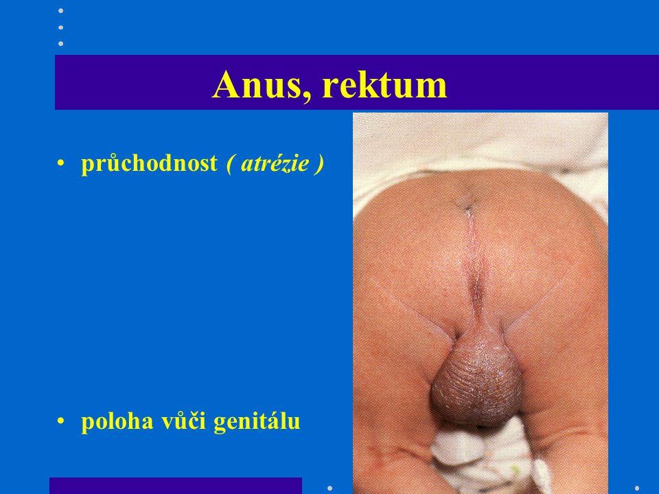 Končetiny fraktury (porodní trauma, osteopenie) VVV ( polydaktilie, syndaktilie, pes equinovarus, redukční deformity, příčná dlaňová-opičí rýha= m.Down) vrozená luxace kyčlí