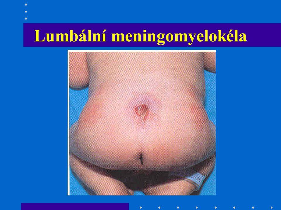 Lumbální meningomyelokéla
