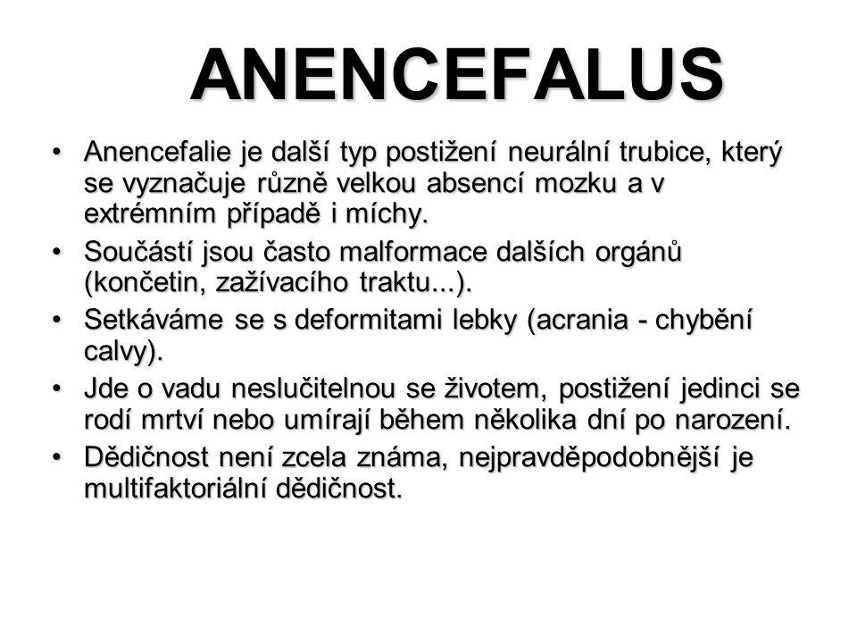 ANENCEFALUS ANENCEFALUS Anencefalie je další typ postižení neurální trubice, který se vyznačuje různě velkou absencí mozku a v extrémním případě i míc