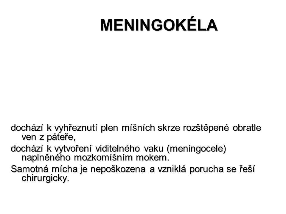 MENINGOKÉLA MENINGOKÉLA dochází k vyhřeznutí plen míšních skrze rozštěpené obratle ven z páteře, dochází k vytvoření viditelného vaku (meningocele) na