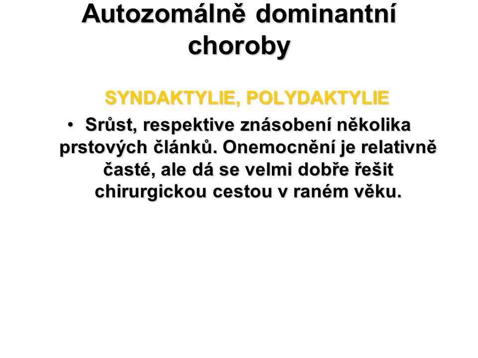 Autozomálně dominantní choroby SYNDAKTYLIE, POLYDAKTYLIE SYNDAKTYLIE, POLYDAKTYLIE Srůst, respektive znásobení několika prstových článků. Onemocnění j
