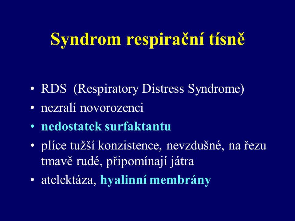 Syndrom respirační tísně RDS (Respiratory Distress Syndrome) nezralí novorozenci nedostatek surfaktantu plíce tužší konzistence, nevzdušné, na řezu tmavě rudé, připomínají játra atelektáza, hyalinní membrány