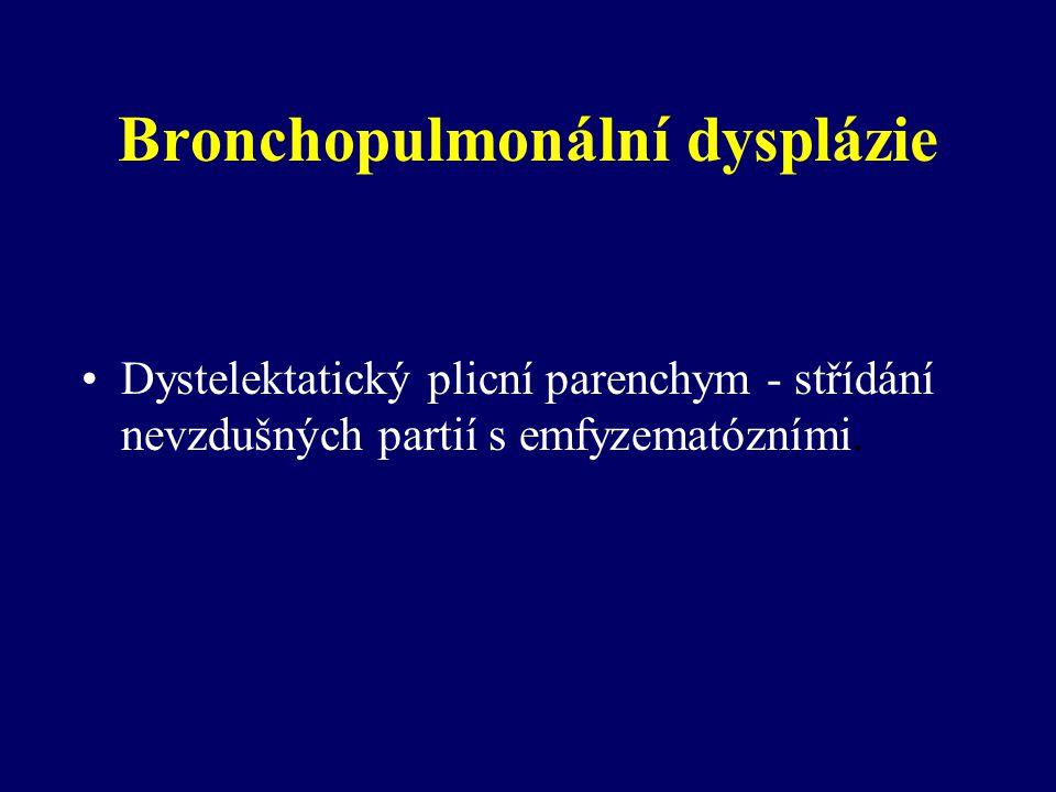 Bronchopulmonální dysplázie Dystelektatický plicní parenchym - střídání nevzdušných partií s emfyzematózními.