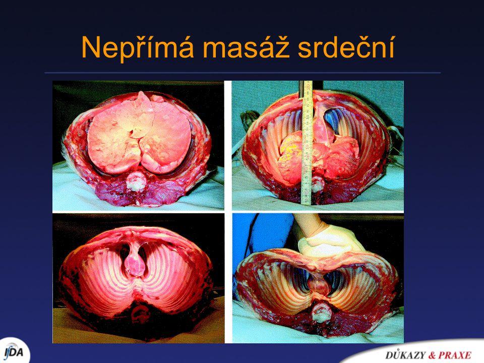 Nepřímá masáž srdeční