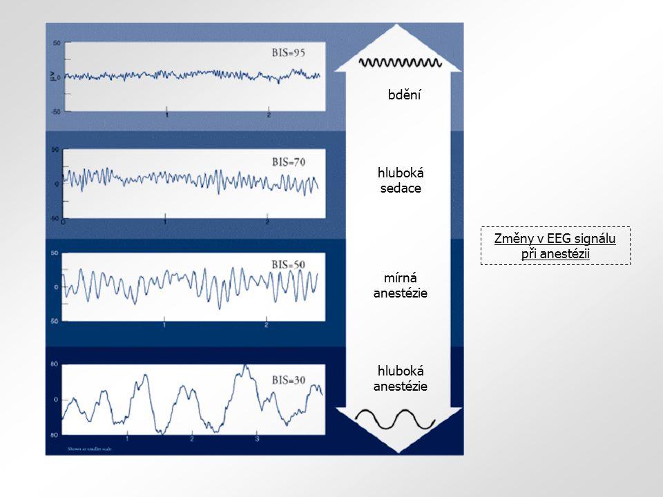 bdění hluboká sedace mírná anestézie hluboká anestézie Změny v EEG signálu při anestézii