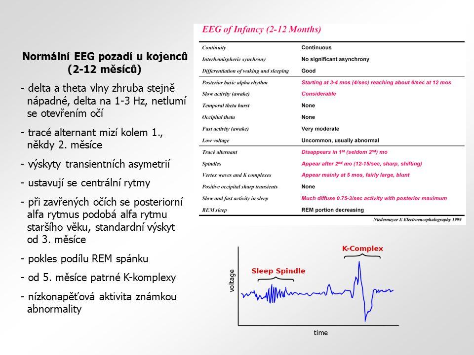 Normální EEG pozadí u kojenců (2-12 měsíců) - delta a theta vlny zhruba stejně nápadné, delta na 1-3 Hz, netlumí se otevřením očí - tracé alternant mi