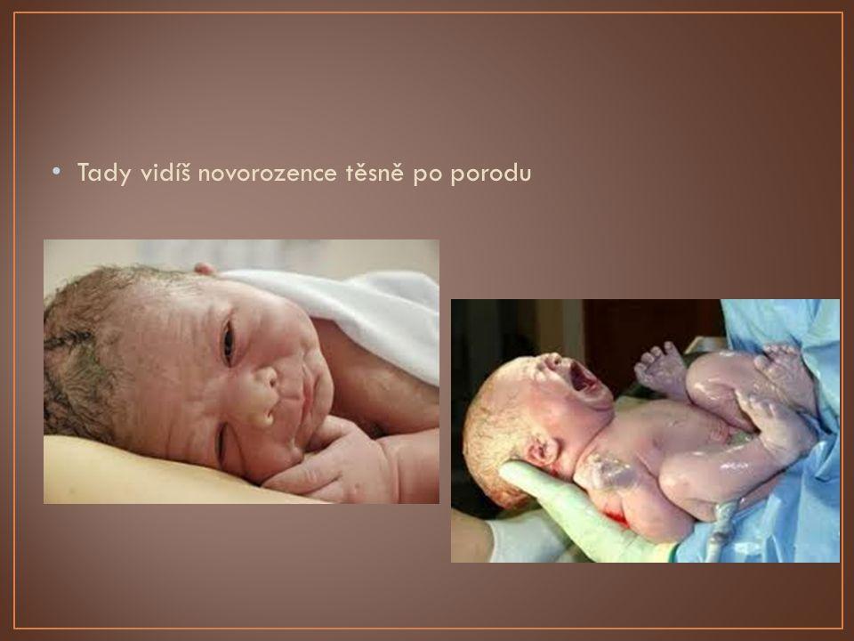 Tady vidíš novorozence těsně po porodu
