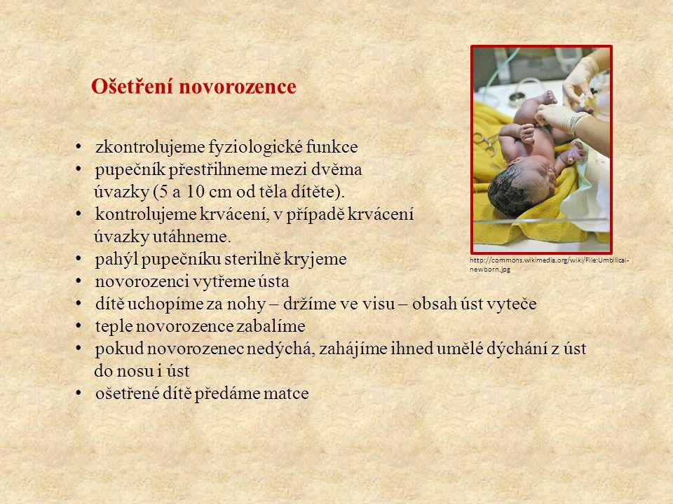 Ošetření novorozence zkontrolujeme fyziologické funkce pupečník přestřihneme mezi dvěma úvazky (5 a 10 cm od těla dítěte). kontrolujeme krvácení, v př