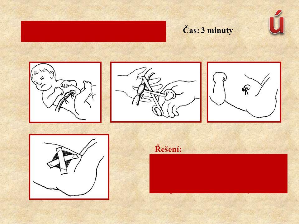Popište ošetření novorozence: Řešení: 1.podvázání pupečníku 2.přestřižení pupečníku 3.kontrola krvácení pupečníku 4.přiložení sterilního krytí Čas: 3