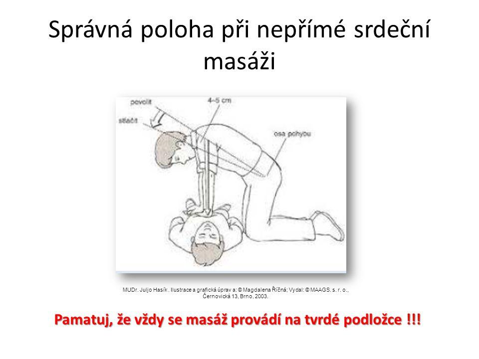 pokud není zachránce proškolen v provádění ventilace ( dýchání z plic do plic, použitím pomůcek) provádí pouze masáž pokud je zachránce proškolen v pr