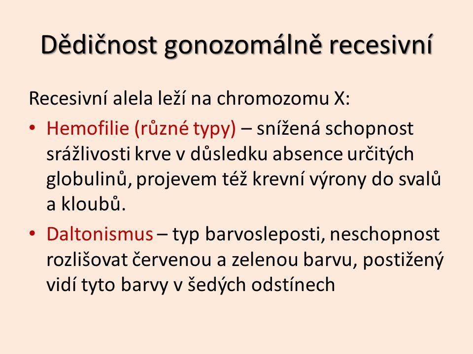 Recesivní alela leží na chromozomu X: Hemofilie (různé typy) – snížená schopnost srážlivosti krve v důsledku absence určitých globulinů, projevem též krevní výrony do svalů a kloubů.