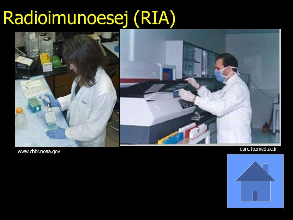 Radioimunoesej (RIA) www.chbr.noaa.gov darc.tbzmed.ac.ir