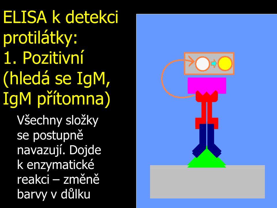 ELISA k detekci protilátky: 1. Pozitivní (hledá se IgM, IgM přítomna) Všechny složky se postupně navazují. Dojde k.enzymatické reakci – změně barvy v