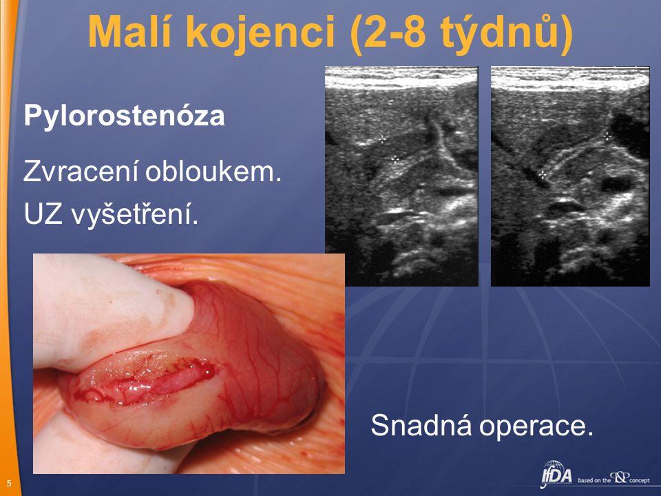5 Malí kojenci (2-8 týdnů) Pylorostenóza Zvracení obloukem. UZ vyšetření. Snadná operace.