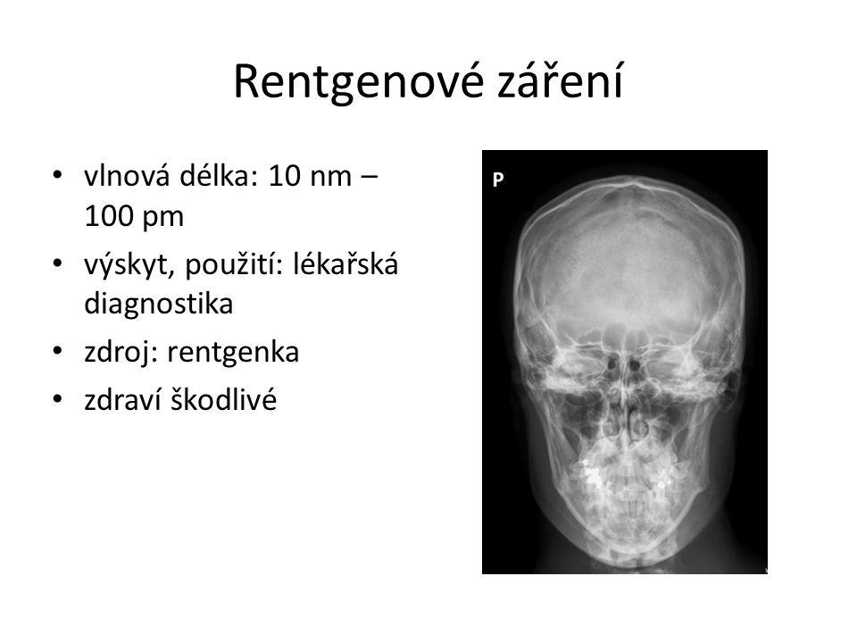 Rentgenové záření vlnová délka: 10 nm – 100 pm výskyt, použití: lékařská diagnostika zdroj: rentgenka zdraví škodlivé