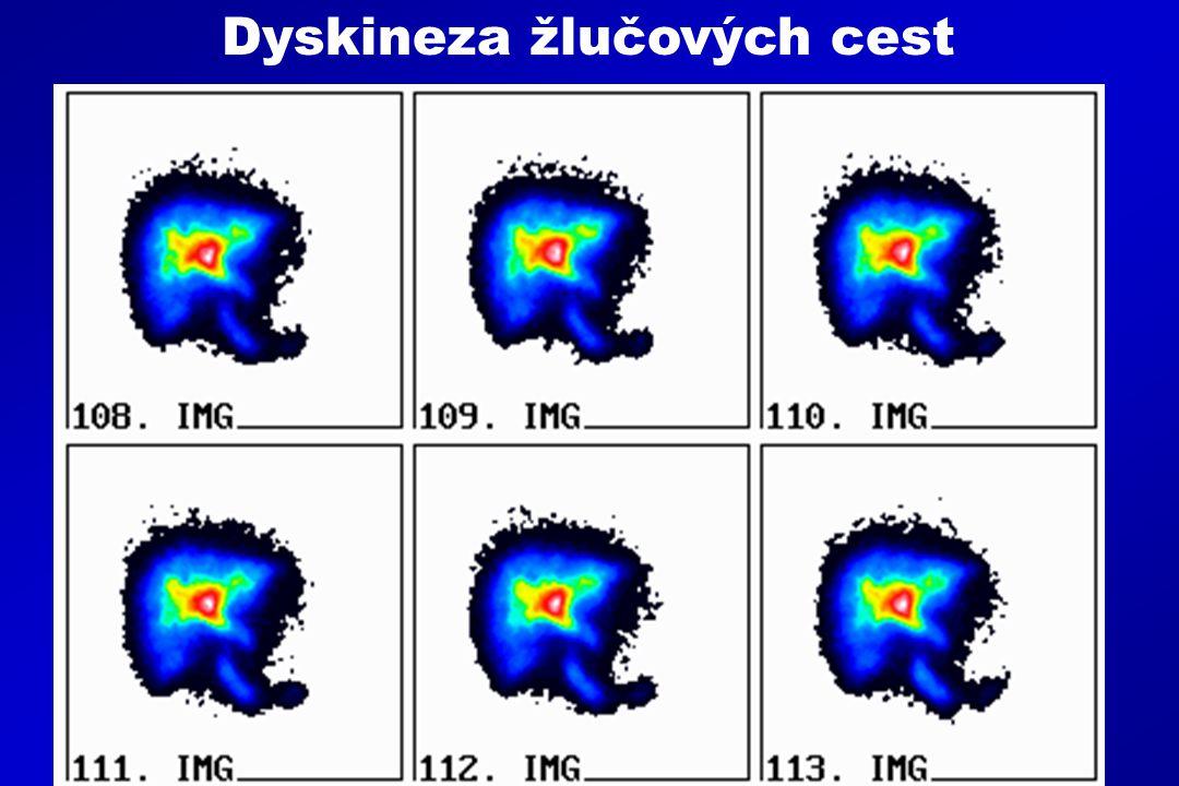 1.Pozdní zobrazení intrahepatálních žlučových cest 2.Zvýraznění intra i extrahepatálních žlučových cest 3.Pozdní zobrazení aktivity ve střevních kličkách 4.Zpomalení transportu do střev 5.Výrazná aktivita ve žlučovém stromu na konci vyšetření Dyskineza žlučových cest