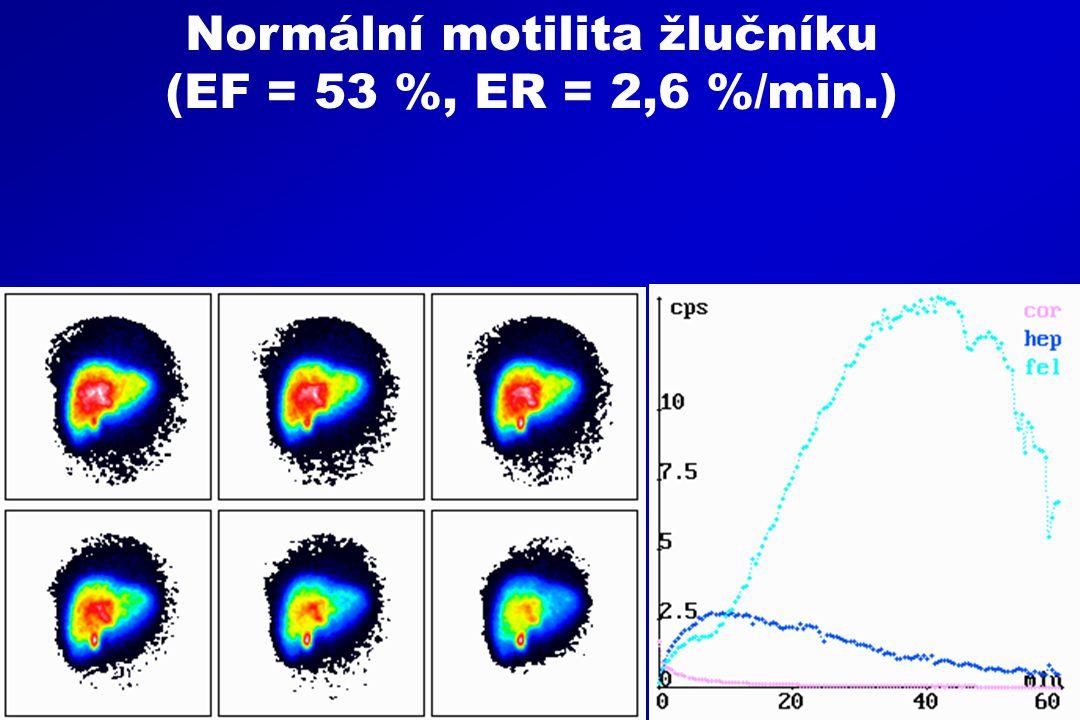 Normální motilita žlučníku (EF = 53 %, ER = 2,6 %/min.)
