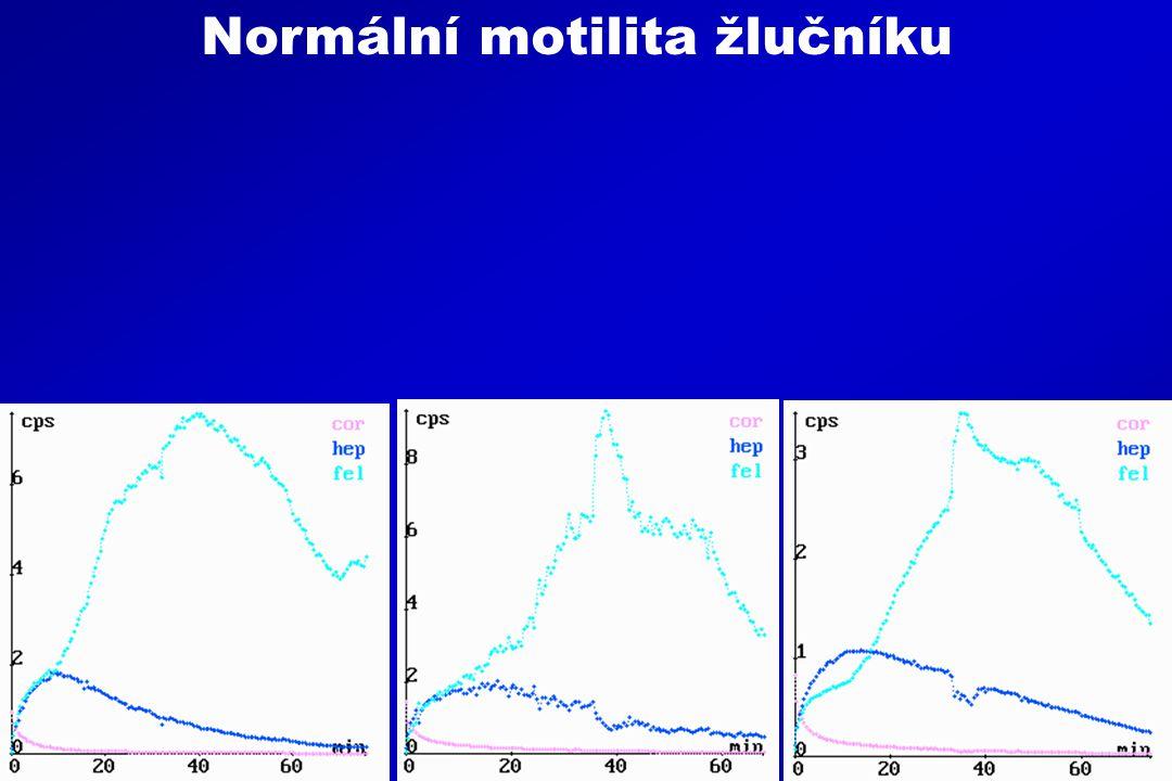 Normální motilita žlučníku