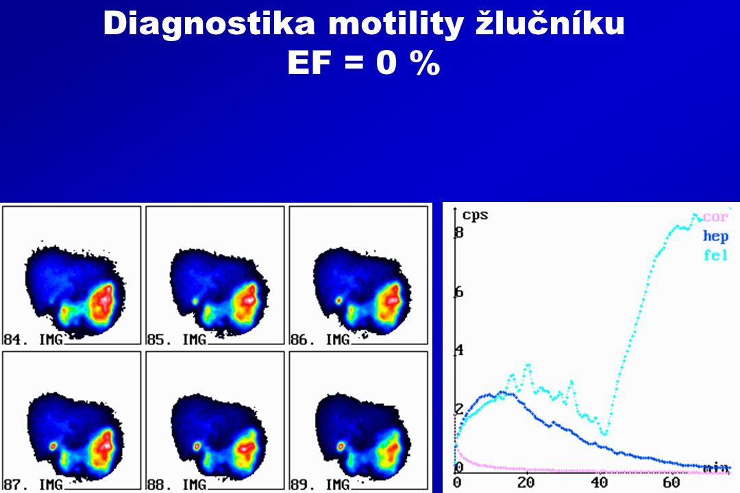 Diagnostika motility žlučníku EF = 0 %