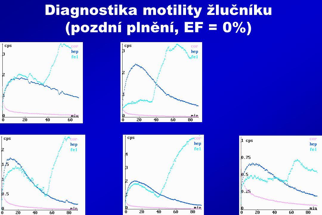 Diagnostika motility žlučníku (pozdní plnění, EF = 0%)