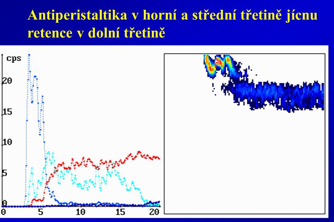 Antiperistaltika v horní a střední třetině jícnu retence v dolní třetině