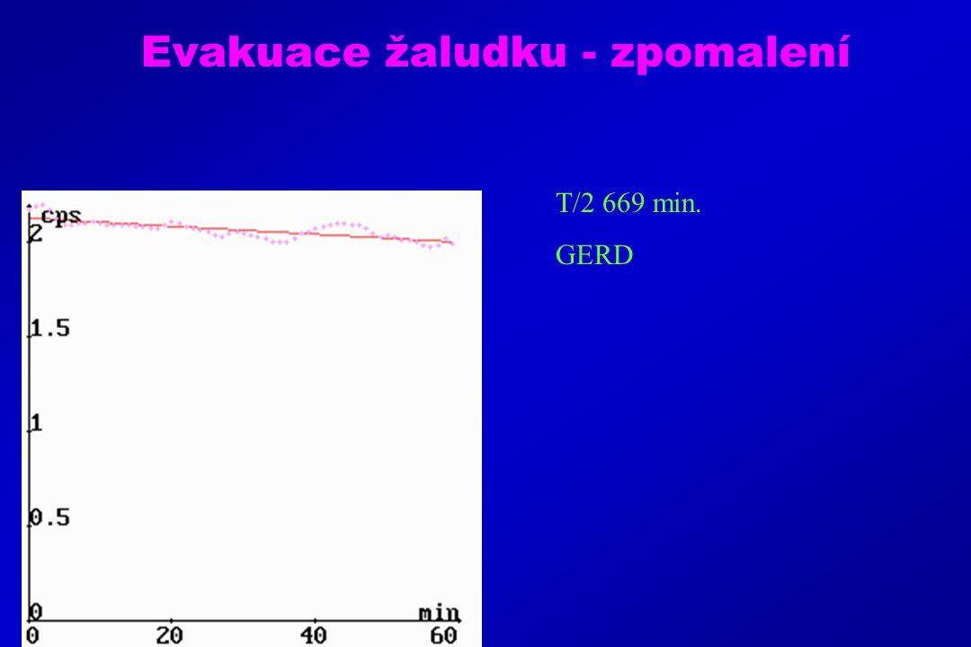 Evakuace žaludku - zpomalení T/2 669 min. GERD