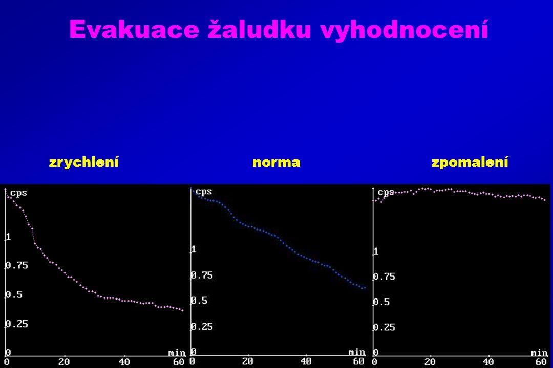 Evakuace žaludku vyhodnocení zrychlení norma zpomalení
