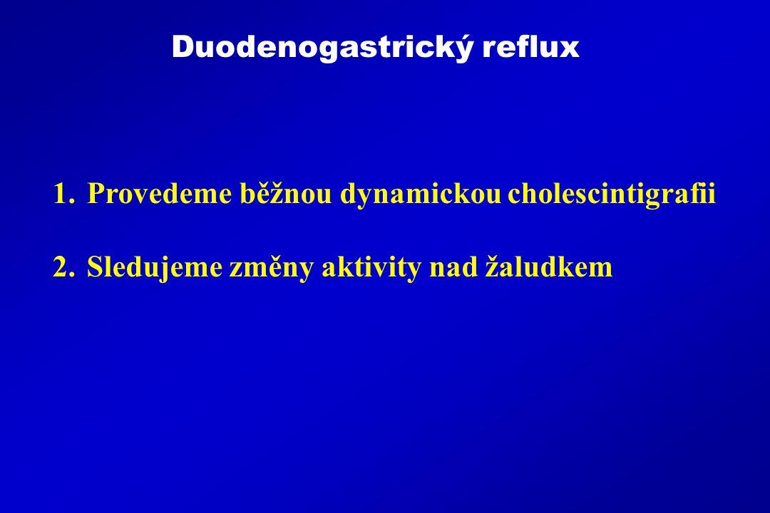 1.Provedeme běžnou dynamickou cholescintigrafii 2.Sledujeme změny aktivity nad žaludkem Duodenogastrický reflux