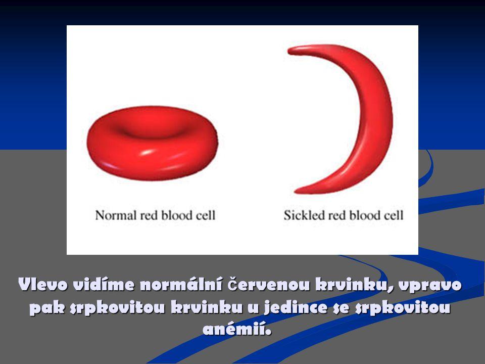 Vlevo vidíme normální č ervenou krvinku, vpravo pak srpkovitou krvinku u jedince se srpkovitou anémií.