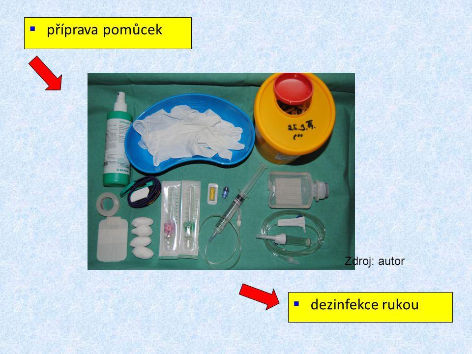 """HYGIENICKÁ DEZINFEKCE RUKOU  před manipulací s invazivními pomůckami, bez ohledu na to, zda se používají rukavice či nikoli  před nasazením a po sejmutí rukavic  přípravek určený k hygienické dezinfekci rukou  přípravek vtírat na suchou pokožku v množství cca 3 ml po dobu minimálně 20 vteřin  ruce musí být po celou dobu trvání postupu vlhké  přípravek aplikovat na suchou pokožku rukou a nechat zcela zaschnout  ruce neoplachovat, """"nemávat , neotírat"""