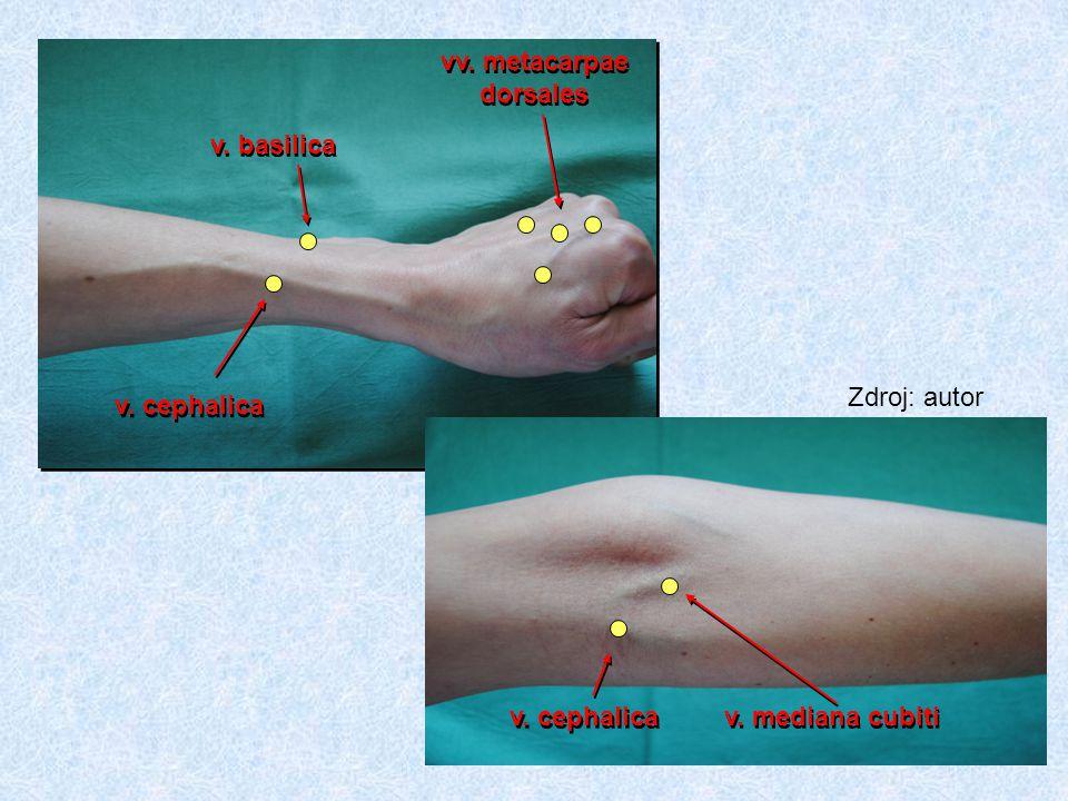ŽÍLY NEVHODNÉ K PERIFERNÍ KANYLACI málo viditelné žíly, křehké a sklerotické žíly žíly v místech ohybu, v blízkosti tepen a nervů žíly podrážděné předchozí kanylací žíly v oblasti infikované na končetině se shuntem nebo rezervované pro shunt žíly v místě zlomenin a jiných poranění žíly na končetině plegické nebo paretické, s anatomickými deformitami, s lymfedémem žíly na dolní končetině