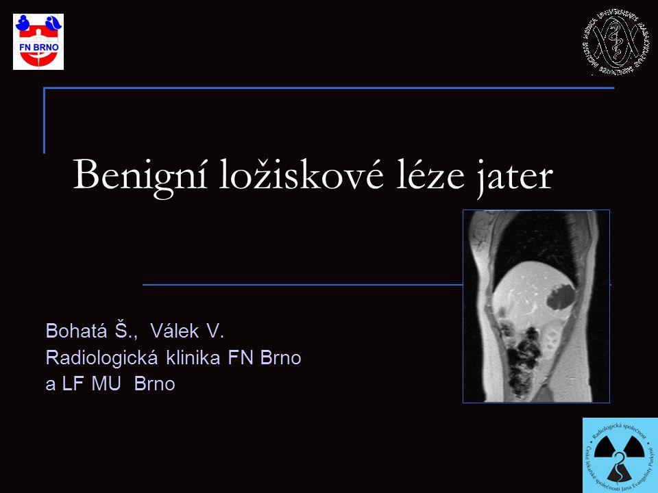 Benigní ložiskové léze jater Bohatá Š., Válek V. Radiologická klinika FN Brno a LF MU Brno