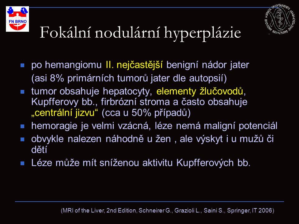 Fokální nodulární hyperplázie po hemangiomu II.
