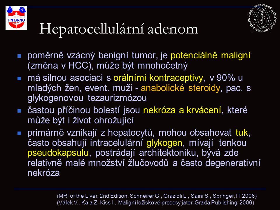 Hepatocellulární adenom poměrně vzácný benigní tumor, je potenciálně maligní (změna v HCC), může být mnohočetný má silnou asociaci s orálními kontraceptivy, v 90% u mladých žen, event.