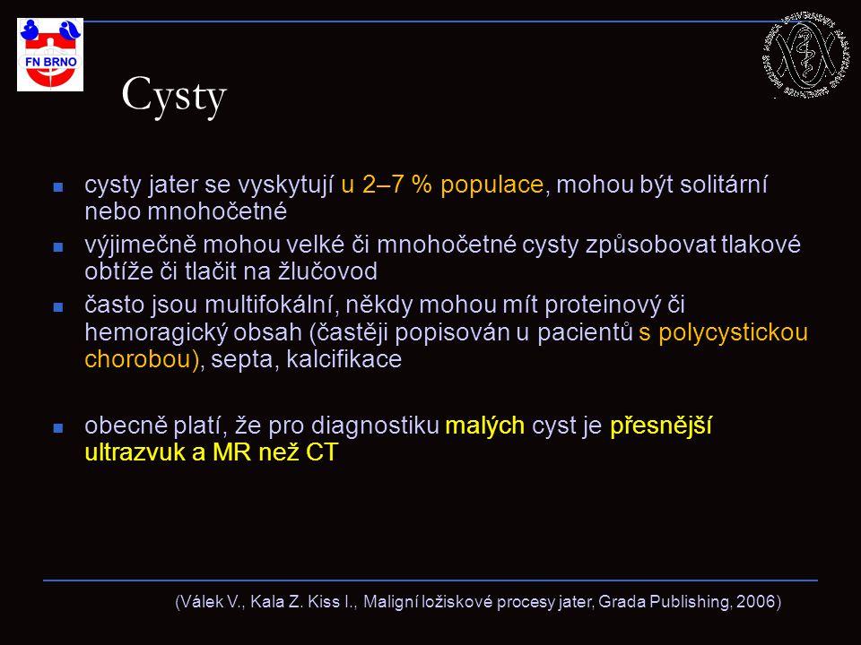 Cysty cysty jater se vyskytují u 2–7 % populace, mohou být solitární nebo mnohočetné výjimečně mohou velké či mnohočetné cysty způsobovat tlakové obtíže či tlačit na žlučovod často jsou multifokální, někdy mohou mít proteinový či hemoragický obsah (častěji popisován u pacientů s polycystickou chorobou), septa, kalcifikace obecně platí, že pro diagnostiku malých cyst je přesnější ultrazvuk a MR než CT (Válek V., Kala Z.