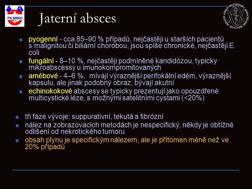 Jaterní absces pyogenní - cca 85–90 % případů, nejčastěji u starších pacientů s malignitou či biliární chorobou, jsou spíše chronické, nejčastěji E.