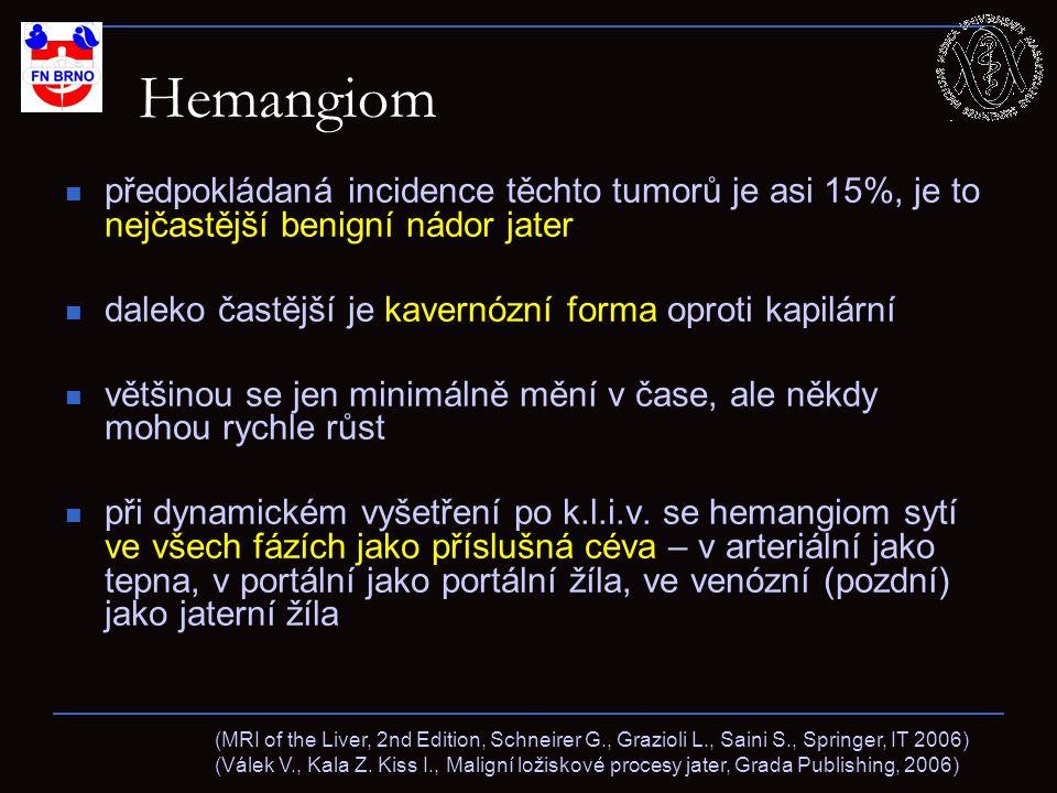 Hemangiom předpokládaná incidence těchto tumorů je asi 15%, je to nejčastější benigní nádor jater daleko častější je kavernózní forma oproti kapilární většinou se jen minimálně mění v čase, ale někdy mohou rychle růst při dynamickém vyšetření po k.l.i.v.