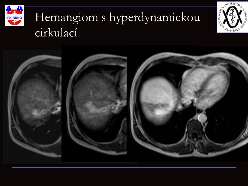 Hemangiom s hyperdynamickou cirkulací