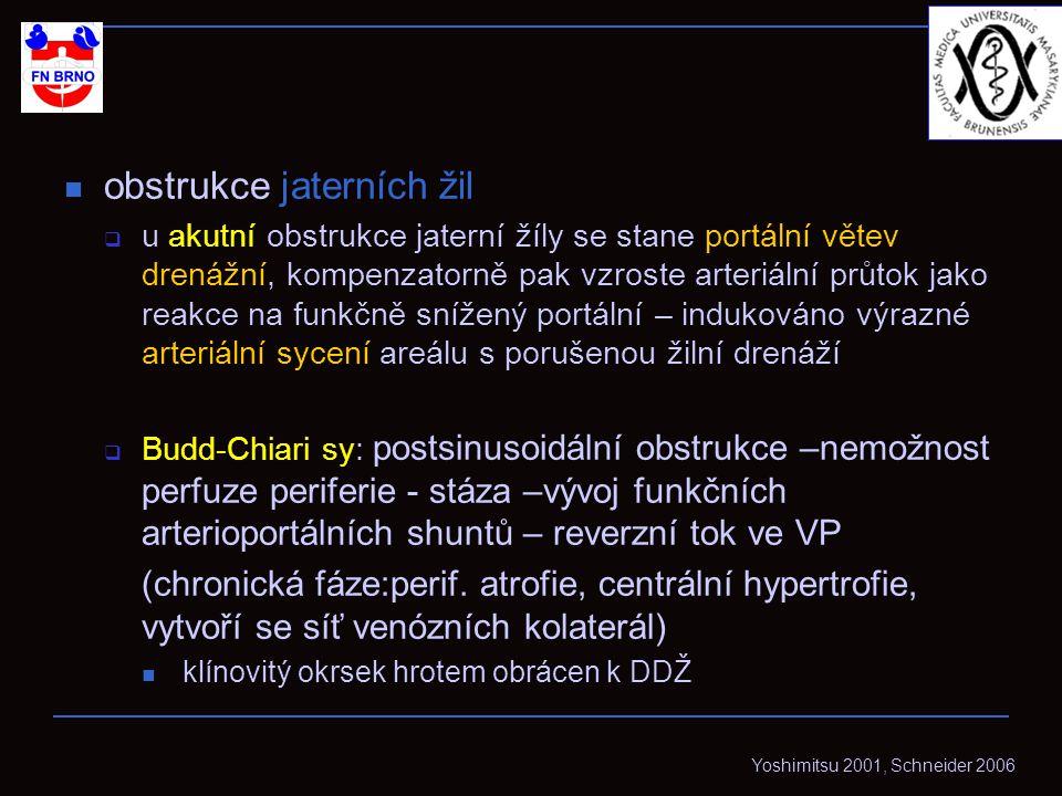 obstrukce jaterních žil  u akutní obstrukce jaterní žíly se stane portální větev drenážní, kompenzatorně pak vzroste arteriální průtok jako reakce na funkčně snížený portální – indukováno výrazné arteriální sycení areálu s porušenou žilní drenáží  Budd-Chiari sy: postsinusoidální obstrukce –nemožnost perfuze periferie - stáza –vývoj funkčních arterioportálních shuntů – reverzní tok ve VP (chronická fáze:perif.