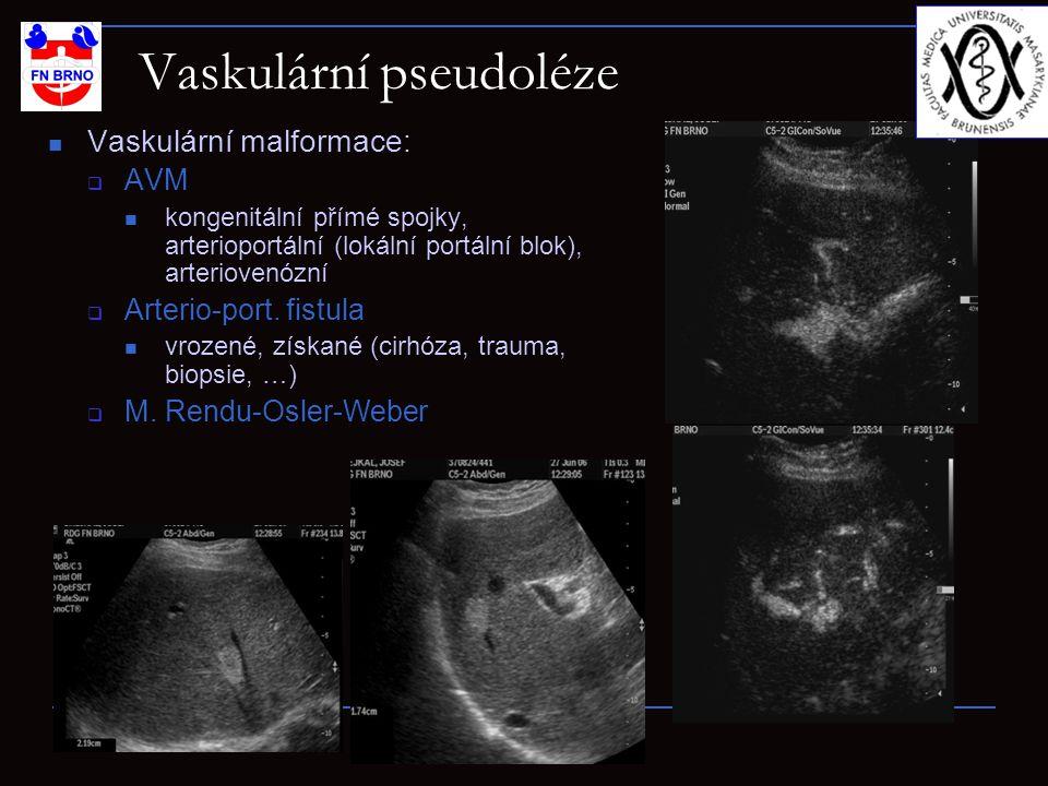 Vaskulární pseudoléze Vaskulární malformace:  AVM kongenitální přímé spojky, arterioportální (lokální portální blok), arteriovenózní  Arterio-port.