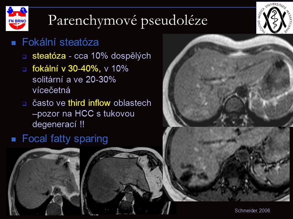 Parenchymové pseudoléze Fokální steatóza  steatóza - cca 10% dospělých  fokální v 30-40%, v 10% solitární a ve 20-30% vícečetná  často ve third inflow oblastech –pozor na HCC s tukovou degenerací !.
